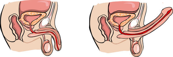 gezonde erectie versus erectiele dysfunctie