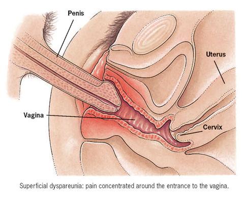 penis grootte vagina