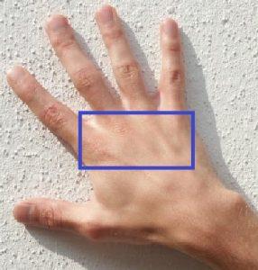 vroege zaadlozing voorkomen hand